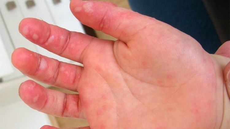 Image of hand with hand, foot, and mouth disease symptoms