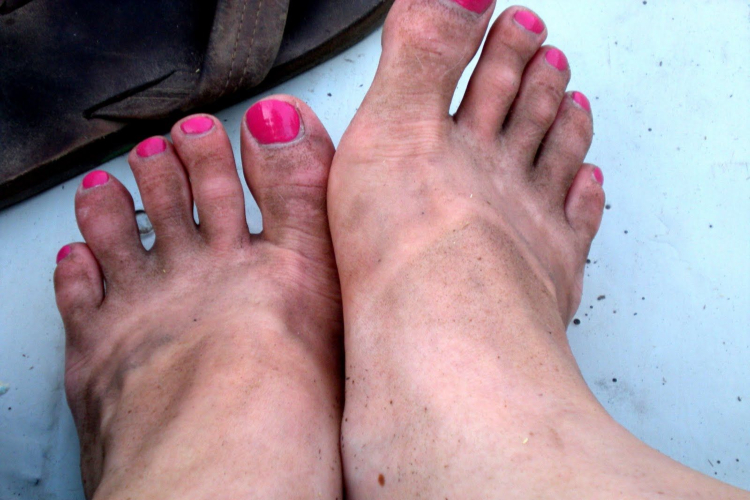 Image of dirty flip flip feet.