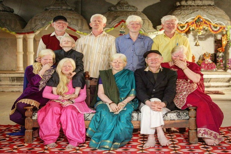 albinism family