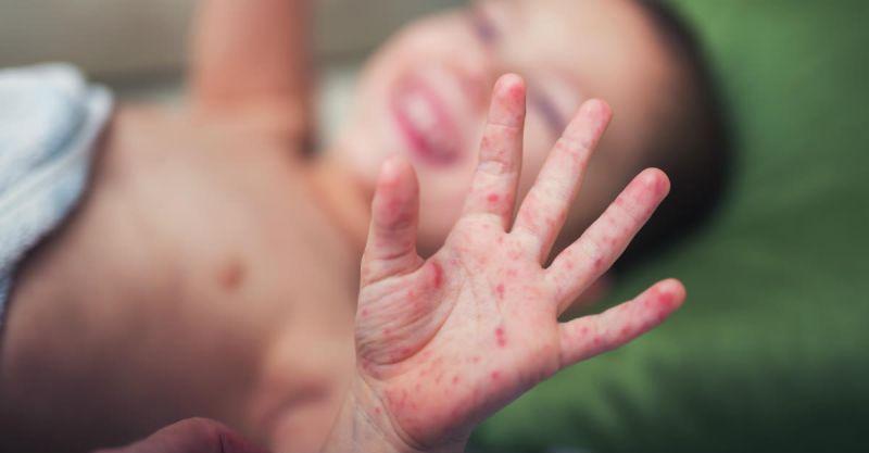 A medida é preventiva já que em Parintins ainda não foi confirmado nenhum caso de sarampo.