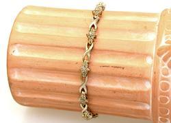 Elegant Diamond X-Link Bracelet in White Gold, 7.5in