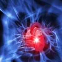 Son características de un infarto al miocardio. - Actividad Semiología II.