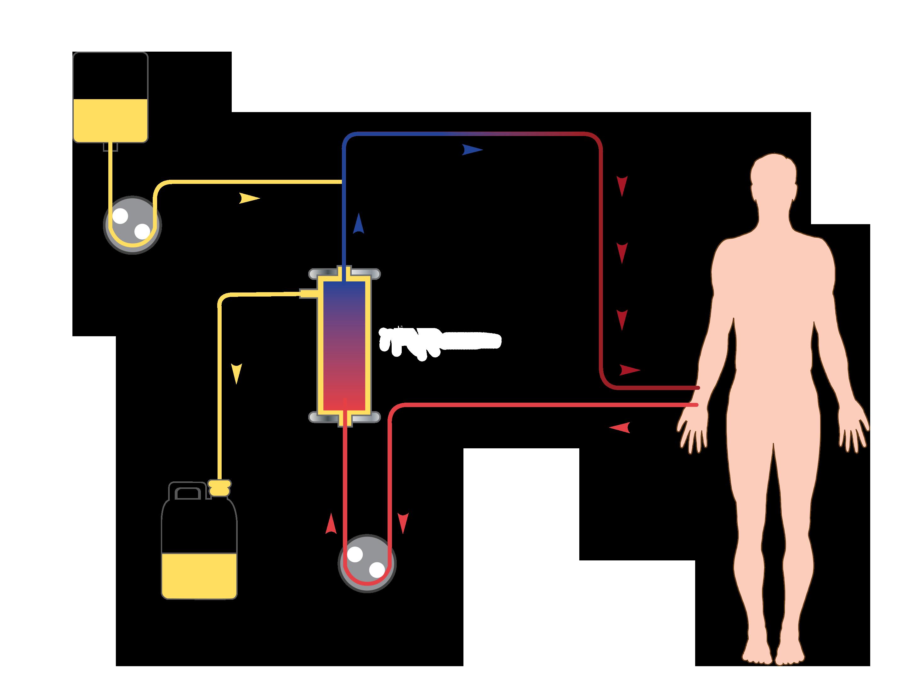 Therapeutic Plasmapheresis - Double Filtration ...