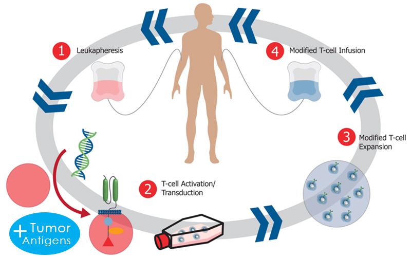 t cell therapy, immune killer cells, killer cells bangkok, natural killer cells bangkok, nk cells bangkok,