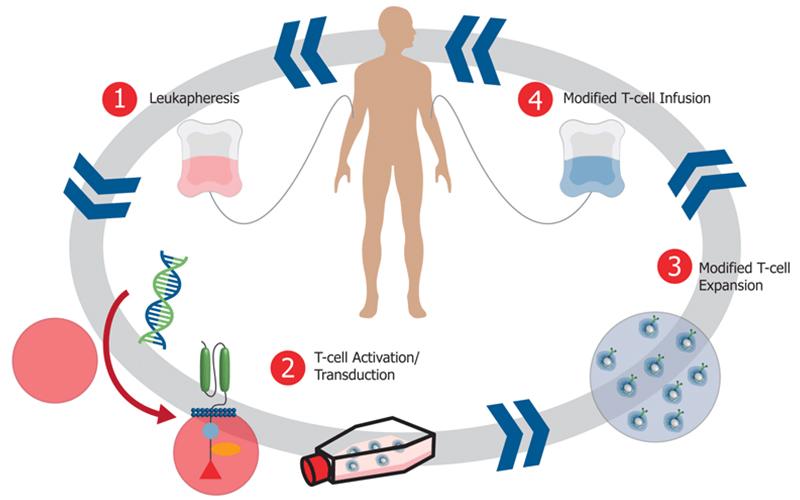 killer cell culture, natural killer cells, cytokine induced killer cells, autologous killer cells