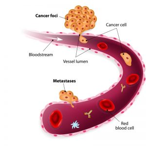 circulating tumor cell test, circulating cancer cell, ctc test, cancer blood test,