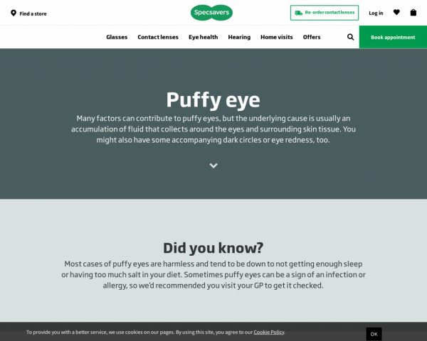 Screenshot of Puffy Eyes Causes and Treatments | Specsavers UK | Specsavers UK