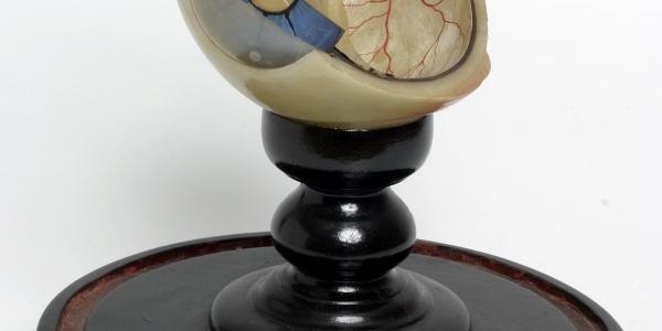Bones, Bottles & Brains: Teaching Anatomy in Dundee & St Andrews 1880–1900