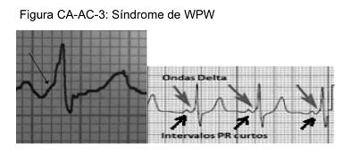 A Síndrome de Wolff – Parkinson – White