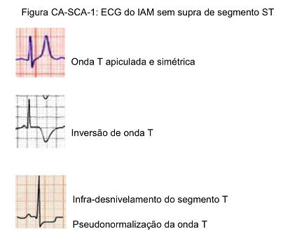 Direto ao ponto: Abordagem Diagnóstica da SCA (síndrome coronariana aguda inicial )
