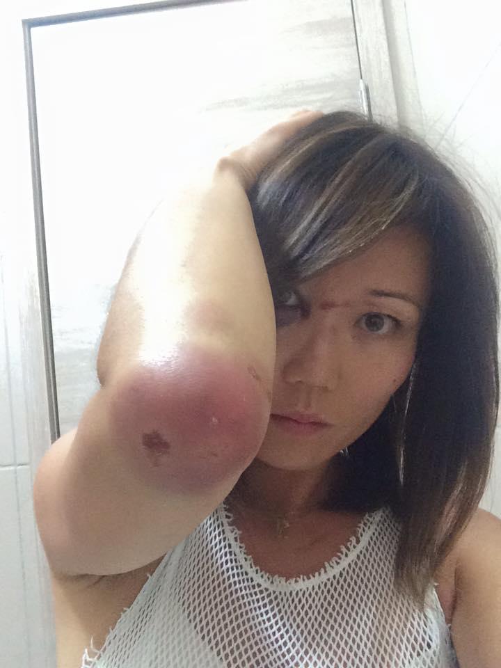 Rika teve hematomas por tentar se defender do agressor (FOTO: Reprodução Facebook)