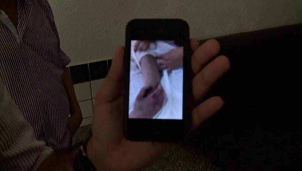 Família alega hematomas nos braços, costas e olho de vítima. (FOTO: TV Jangadeiro/ Barra Pesada)