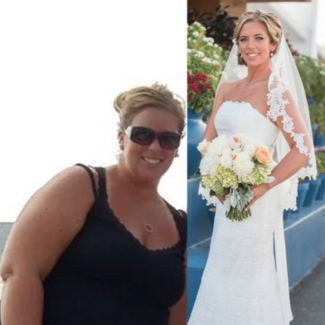 Kellie B. Before and After