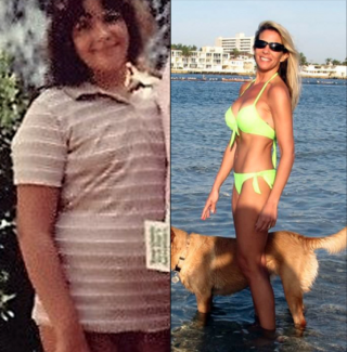 Nancy K. Before and After