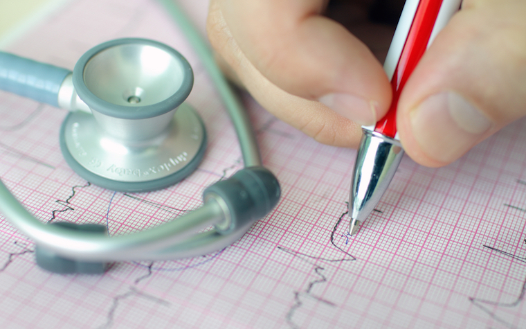 Recent research has indicated that people experiencing short atrial fibrillation episodes face little risk of stroke.