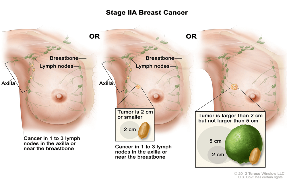Seattle Genetics Announces Submission Of Tucatinib New Drug Application To The U S Fda For Patients With Locally Advanced Or Metastatic Her2 Positive Breast Cancer Fda Health News