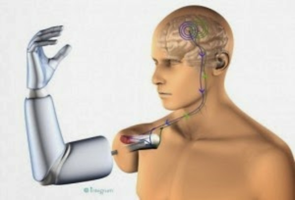 Thought controlled permanent prosthetic arm 2 300x204