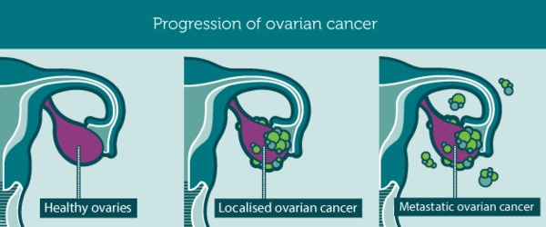 Progression ovariancancer1