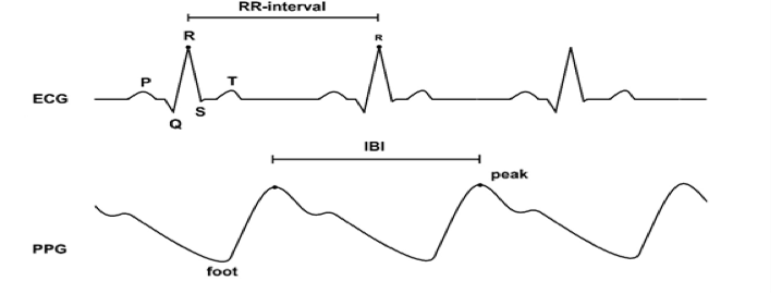 How To Easily Measure Your Heart Rate Variability