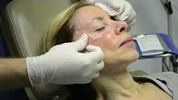 NJ cheekbone enhancement with Radiesse