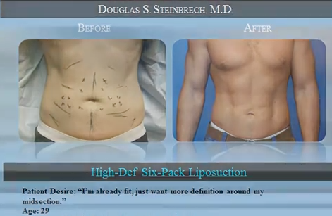 Dr. Steinbrech discusses male plastic surgery in NYC