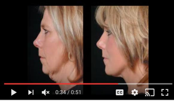 QuickLift Mini Facelift | Paula's Experience Video