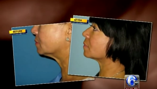 Non-Surgical Neck Lift - Fractora Featured on ABC News