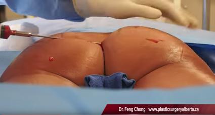 Brazilian Butt Lift - Dr. Feng Chong - Plastic Surgery Alberta