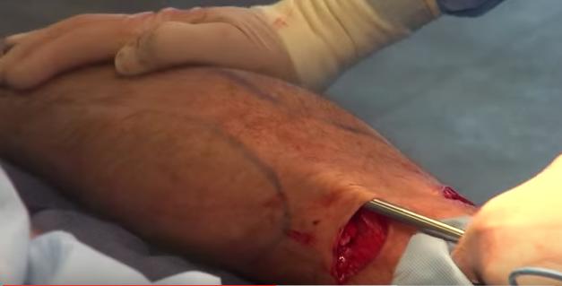 Male Bilateral Calf Implants - Advanced Medical Spa