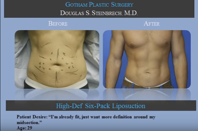 Male liposuction before and after photos of NYC patients