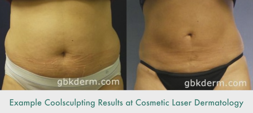 Non-Invasive Fat Removal & Skin Tightening | Dr. Butterwick