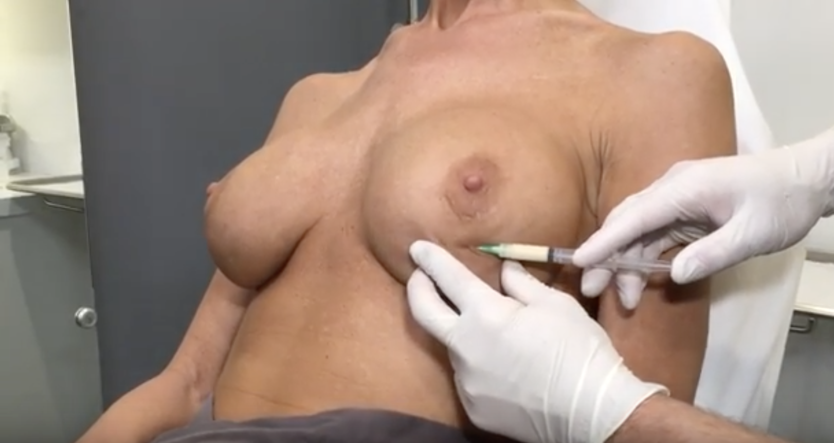 Augmenting Breast with Renuva to eliminate ripples and grooves