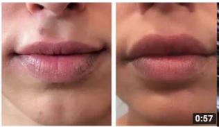 4D Lip Augmentation