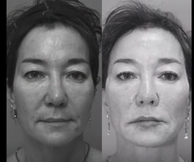 Nonsurgical Facelift using PDO Threads