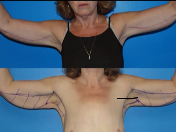 Body Contouring using Quill Sutures