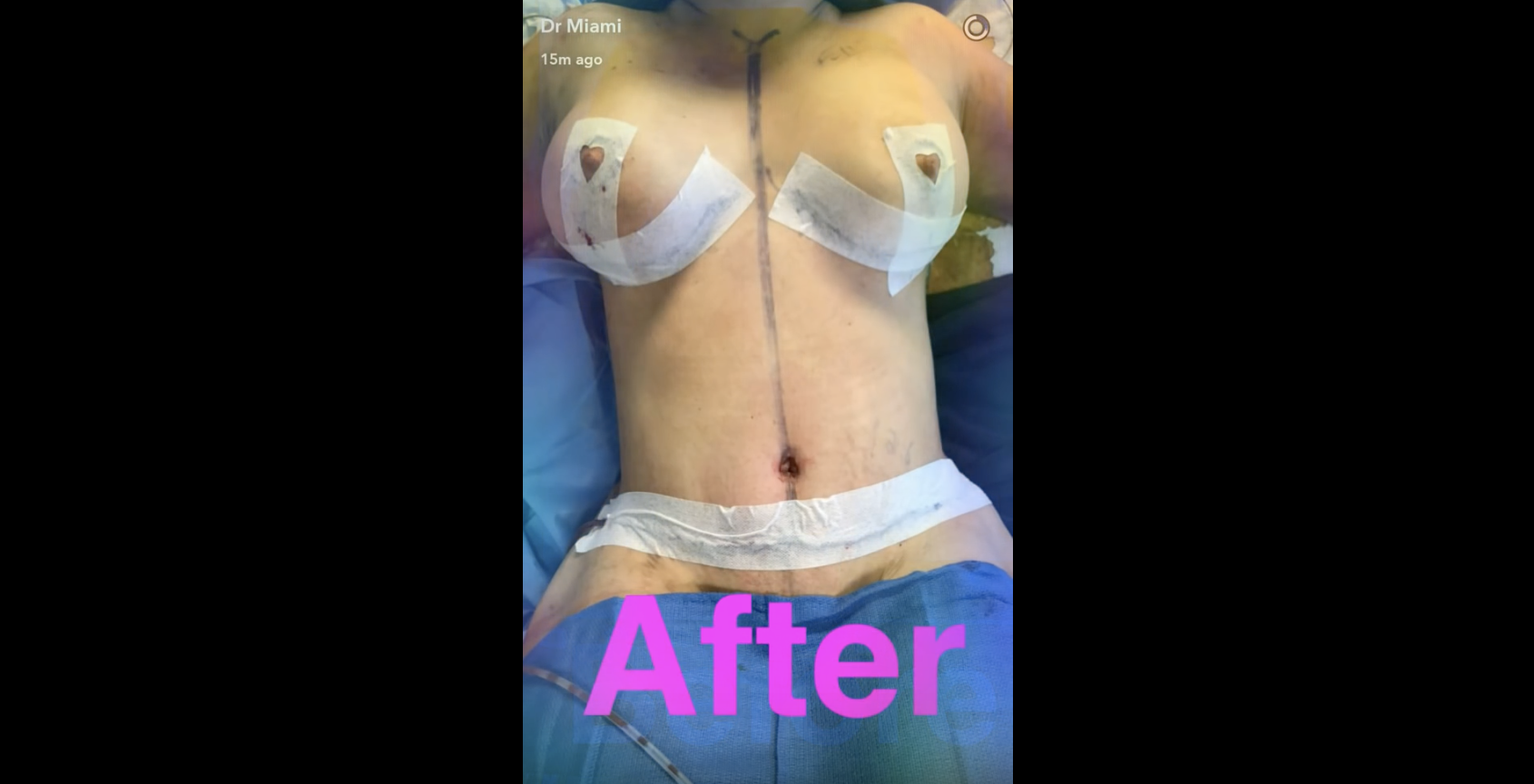 Dr Miami Tummy Tuck Before and After