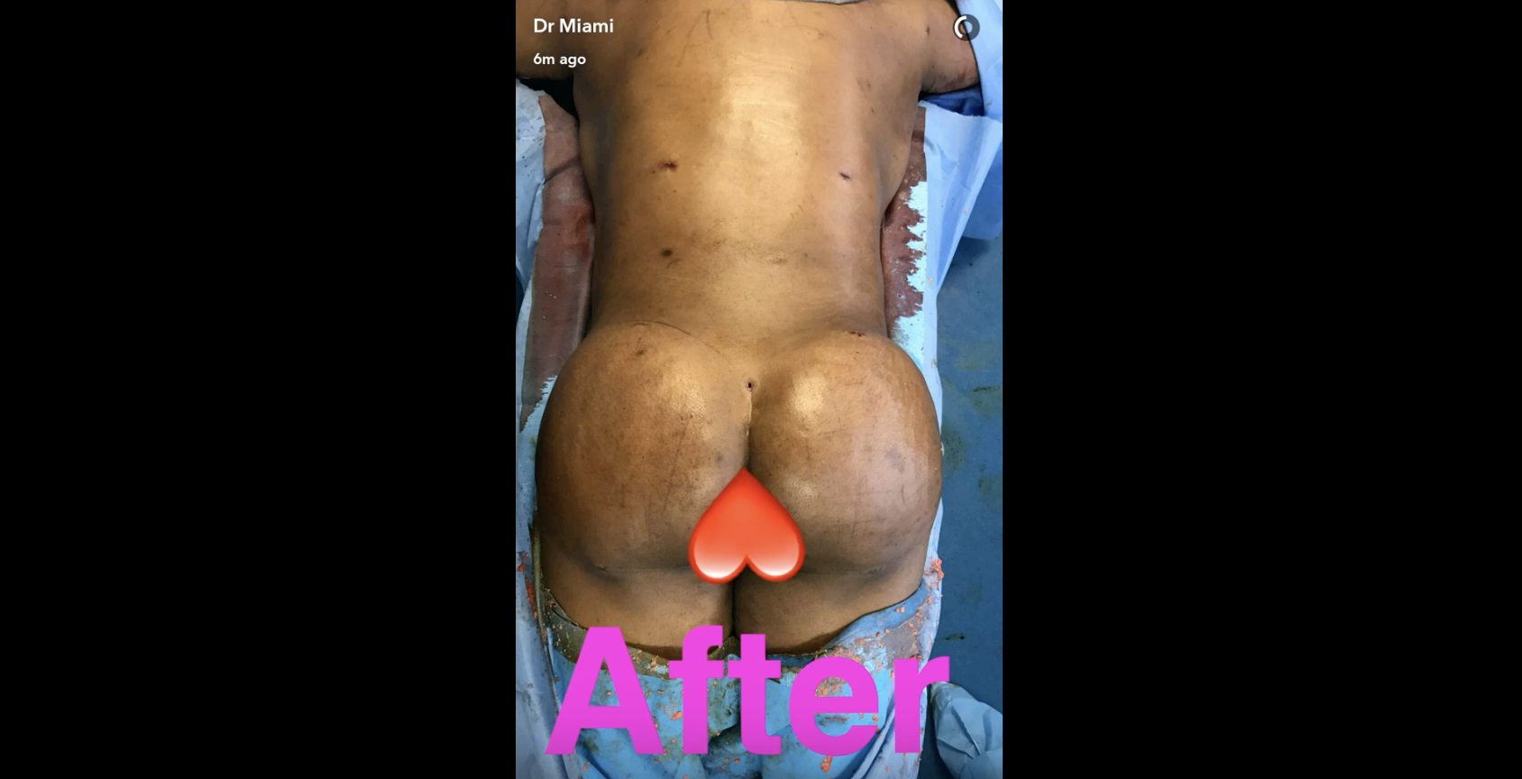 Dr Miami Liposuction before and after