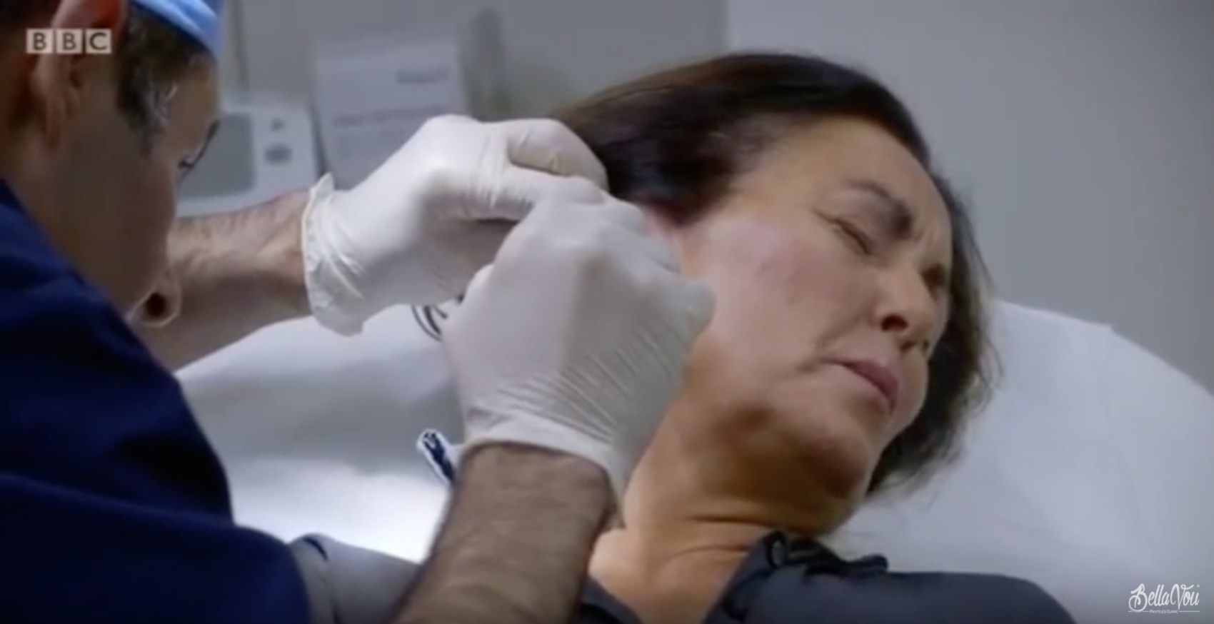 Facelifts and Fillers on BBC One with Bella Vou surgeon Amir Nakhdjevani performing Concept Facelift