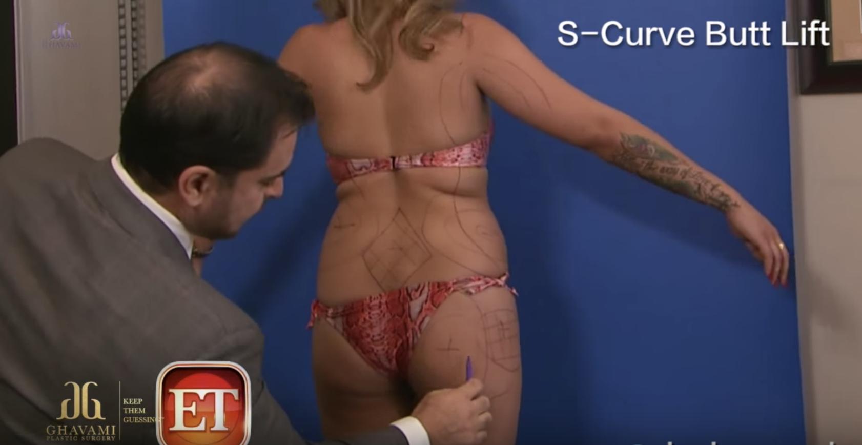 5 DANGERS OF BUTTOCK SURGERY Brazilian Butt Lift BBL