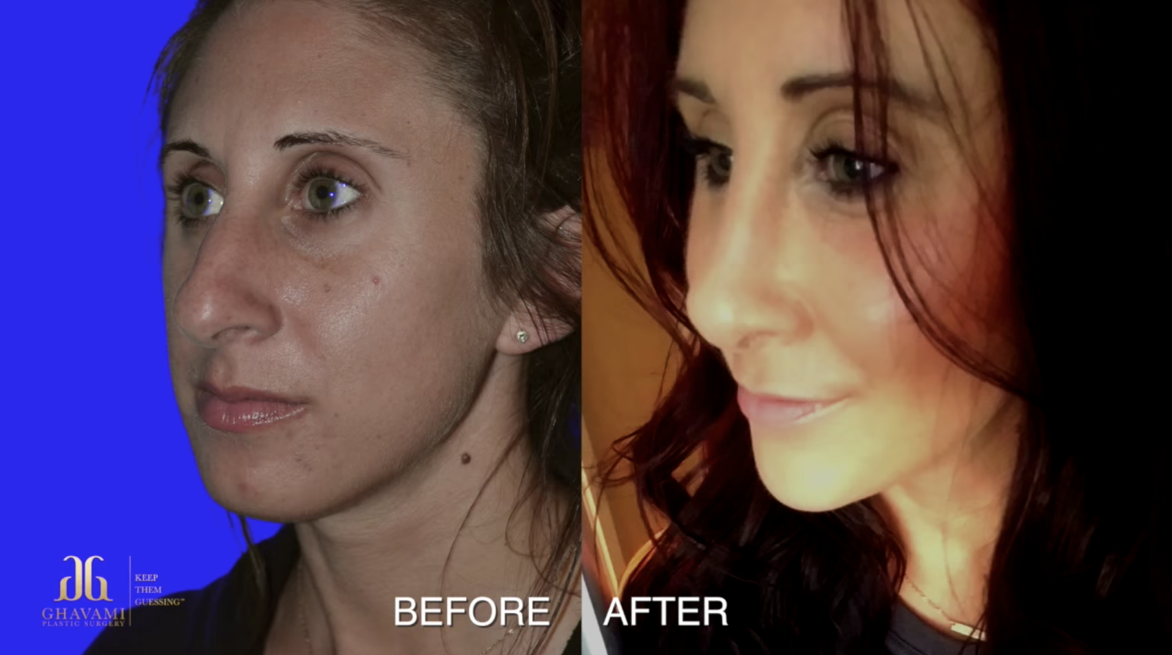 Face Surgery Before and After Transformation