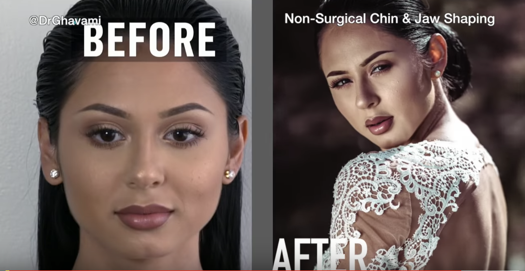Non Surgical Chin Augmentation by Dr Ghavami