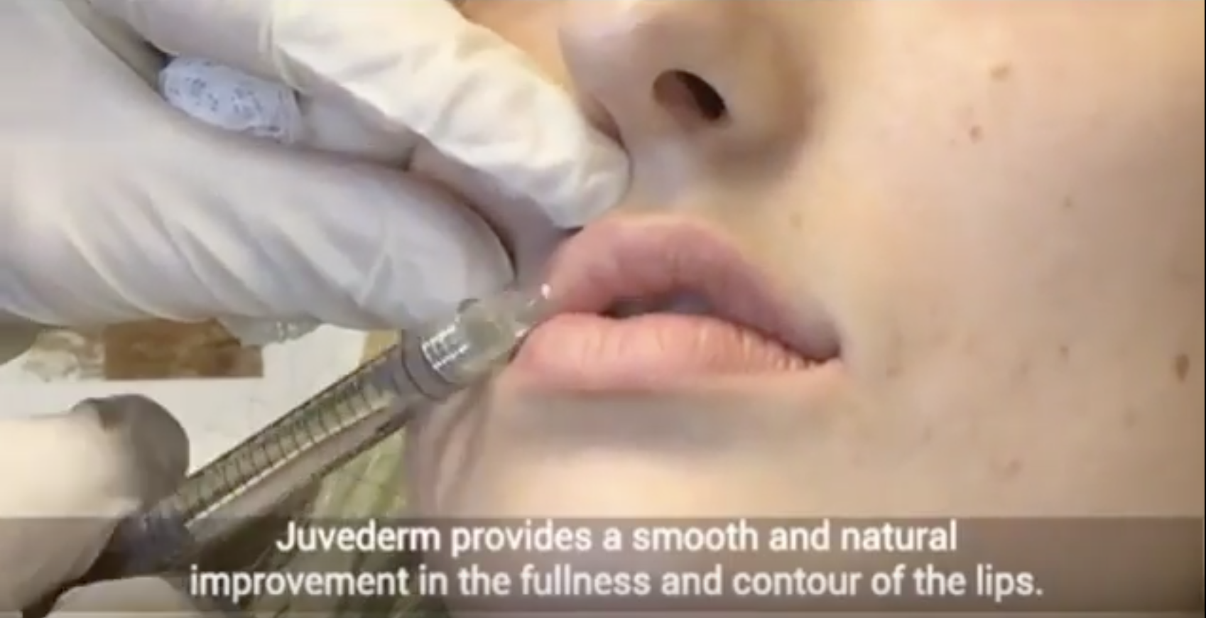 Lip augmentation with Juvederm by Kami Parsa MD