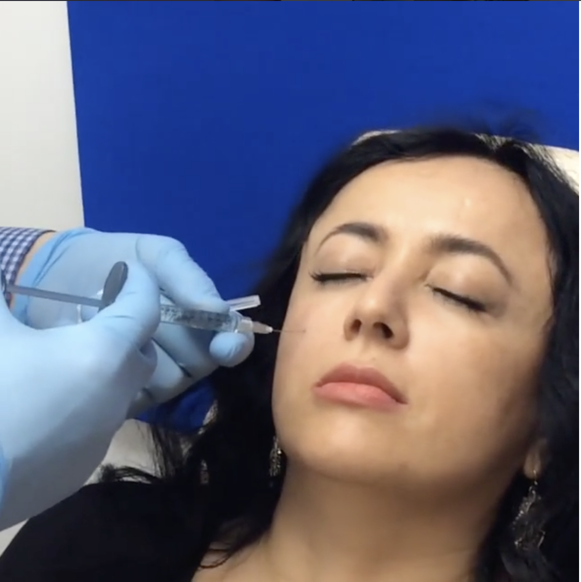 Dr Kopelman injects Voluma for mid face volume