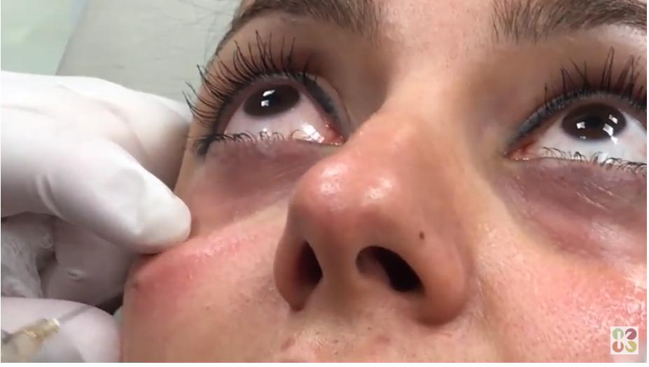 Facial Rejuvenation with Dermal Fillers in NJ