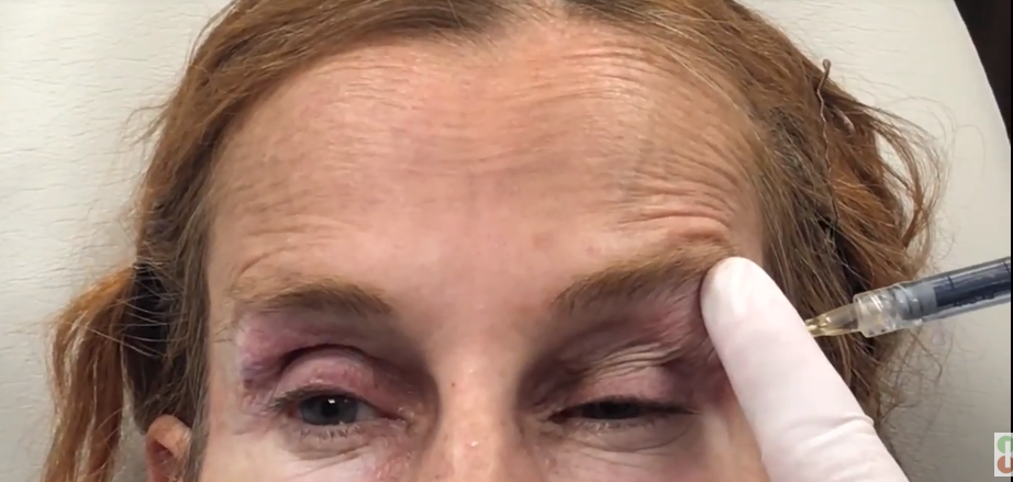 Improvement of Upper Eyelid Hollowness