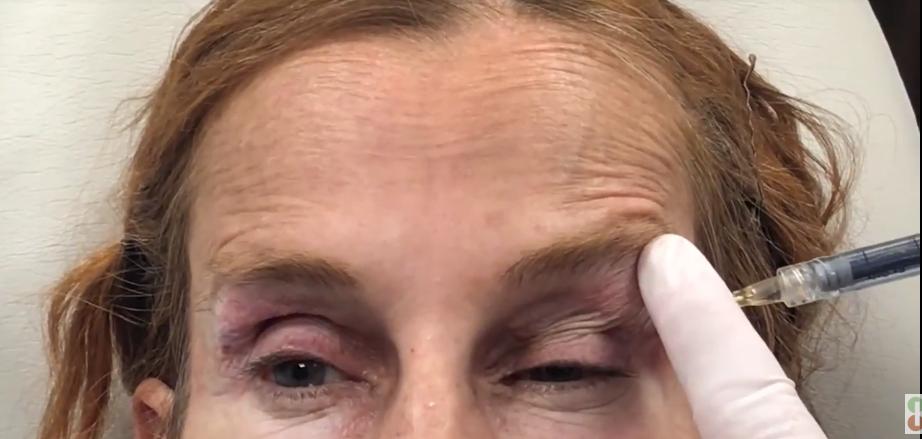 Improvement of Upper Eyelid Hollowness