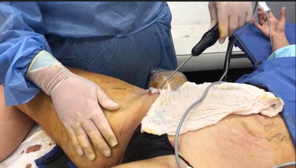 In-Office Vaser Inner thigh liposuction in NJ