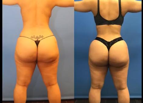 Cinched Waist HD Liposuction