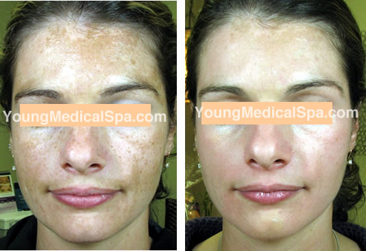 Ep 079 Treating Melasma