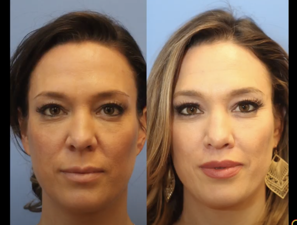 Lip Lift Surgery in Edgewater_New Jersey
